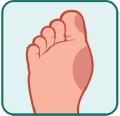 leczenie-wrastajacych-paznokci Podolog Mińsk Mazowiecki - Bezbolesne zabiegi podologiczne Podolog Mińsk Mazowiecki